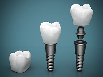 Animation of dental crown supported implant process